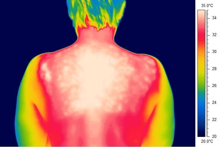 Image result for ICI thermography pictures
