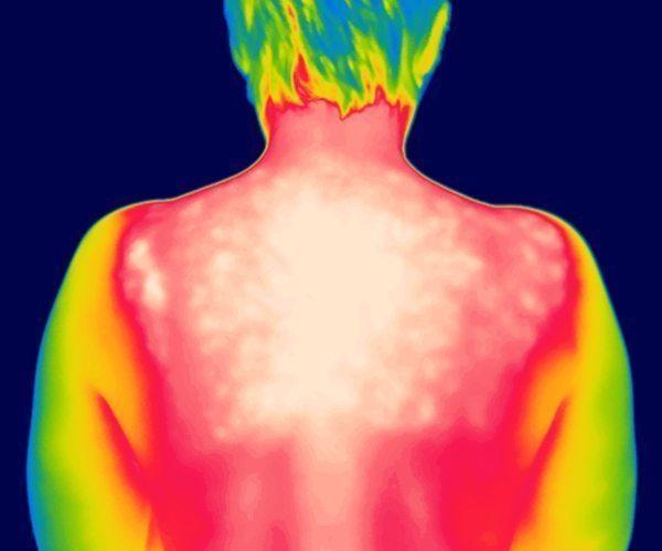 iRed Sunburn in Infrared